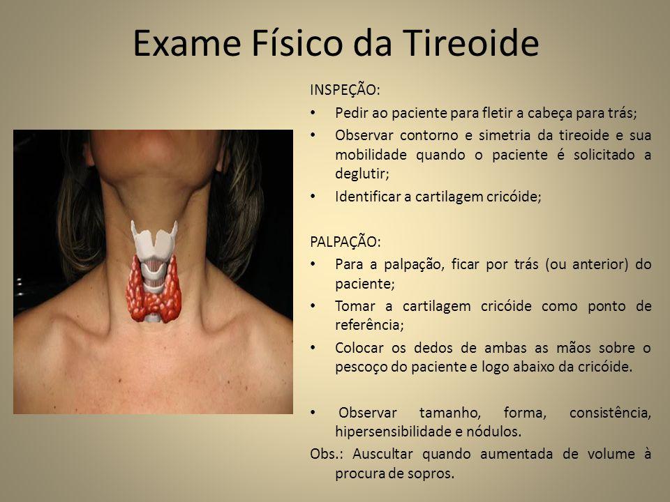 Exame Físico da Tireoide INSPEÇÃO: • Pedir ao paciente para fletir a cabeça para trás; • Observar contorno e simetria da tireoide e sua mobilidade quando o paciente é solicitado a deglutir; • Identificar a cartilagem cricóide; PALPAÇÃO: • Para a palpação, ficar por trás (ou anterior) do paciente; • Tomar a cartilagem cricóide como ponto de referência; • Colocar os dedos de ambas as mãos sobre o pescoço do paciente e logo abaixo da cricóide.