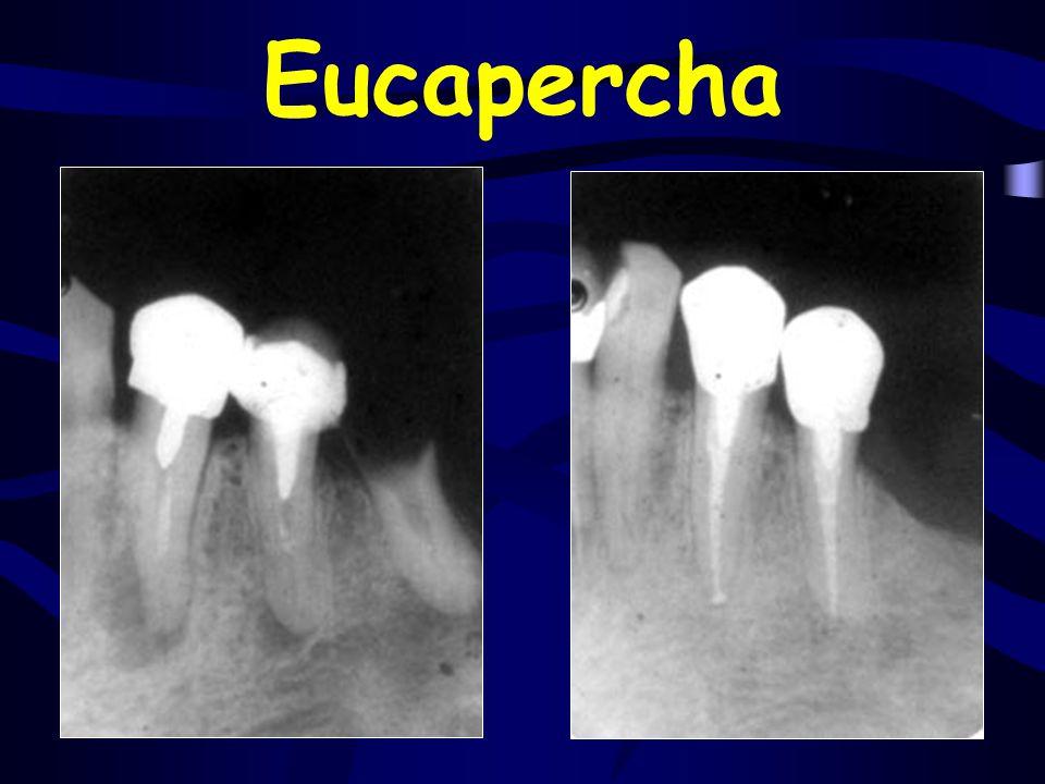 Eucapercha