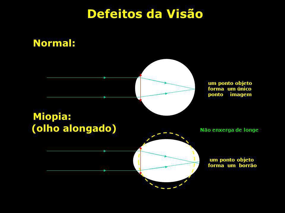 Olho humano e a máquina fotográfica OLHO versus MÁQUINA FOTOGRÁFICA pupila diafragma córnealente diafragma lente retina filme Para maiores detalhes, c