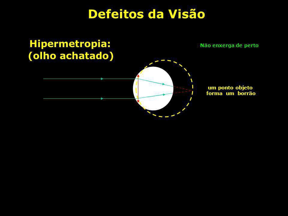 Defeitos da Visão Normal: um ponto objeto forma um único ponto imagem Miopia: um ponto objeto forma um borrão (olho alongado) Não enxerga de longe