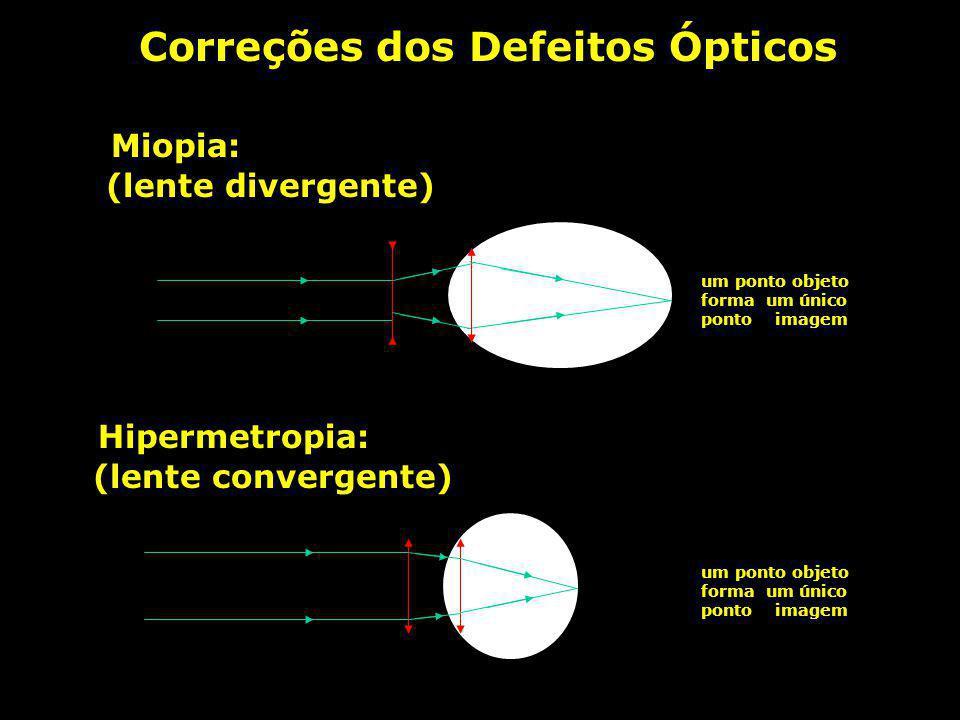 Defeitos da Visão Hipermetropia: um ponto objeto forma um borrão (olho achatado) Não enxerga de perto