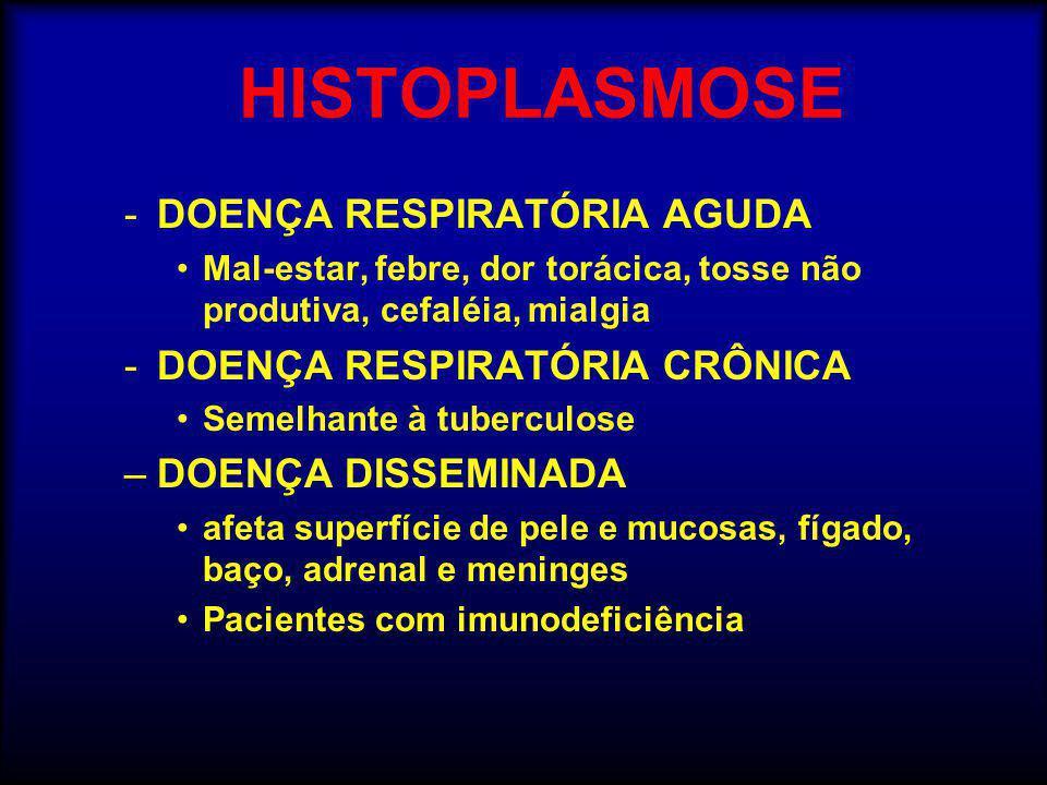 HISTOPLASMOSE -DOENÇA RESPIRATÓRIA AGUDA •Mal-estar, febre, dor torácica, tosse não produtiva, cefaléia, mialgia -DOENÇA RESPIRATÓRIA CRÔNICA •Semelha
