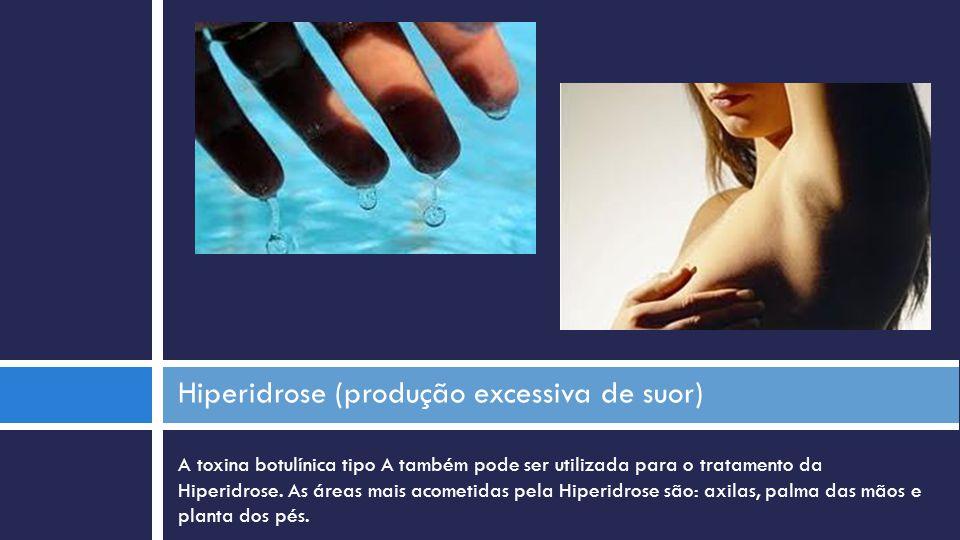 A toxina botulínica tipo A também pode ser utilizada para o tratamento da Hiperidrose. As áreas mais acometidas pela Hiperidrose são: axilas, palma da