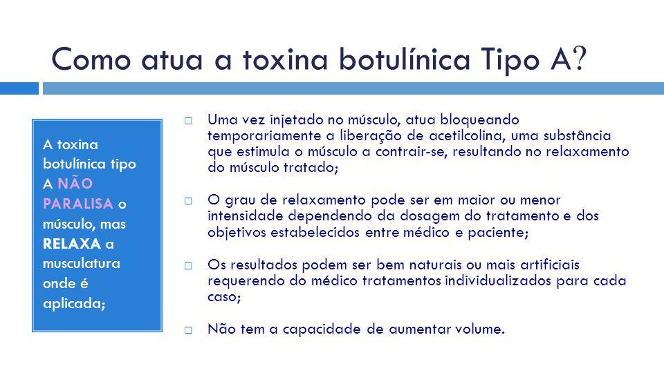 Como atua a toxina botulínica Tipo A ? A toxina botulínica tipo A NÃO PARALISA o músculo, mas RELAXA a musculatura onde é aplicada;  Uma vez injetado