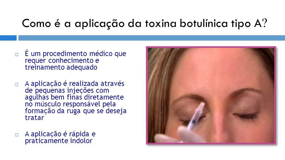 Como é a aplicação da toxina botulínica tipo A ?  É um procedimento médico que requer conhecimento e treinamento adequado  A aplicação é realizada a