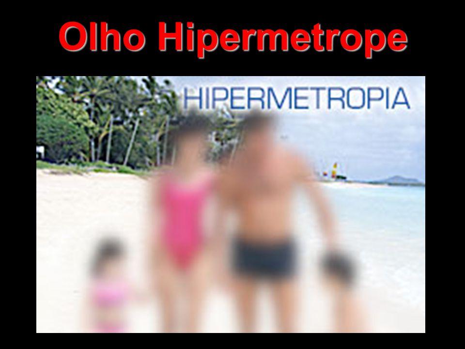 Hipermetropia Perto