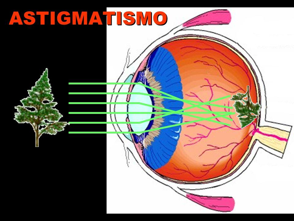 Astigmatismo Distorce