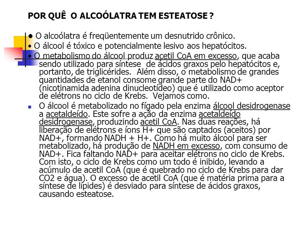 ALCOOL álcool desidrogenase acetaldeído acetaldeído desidrogenase acetil CoA FALTA NADH PARA O CICLO DE KREBS EXCESSO Acido graxo Alcool x esteatose