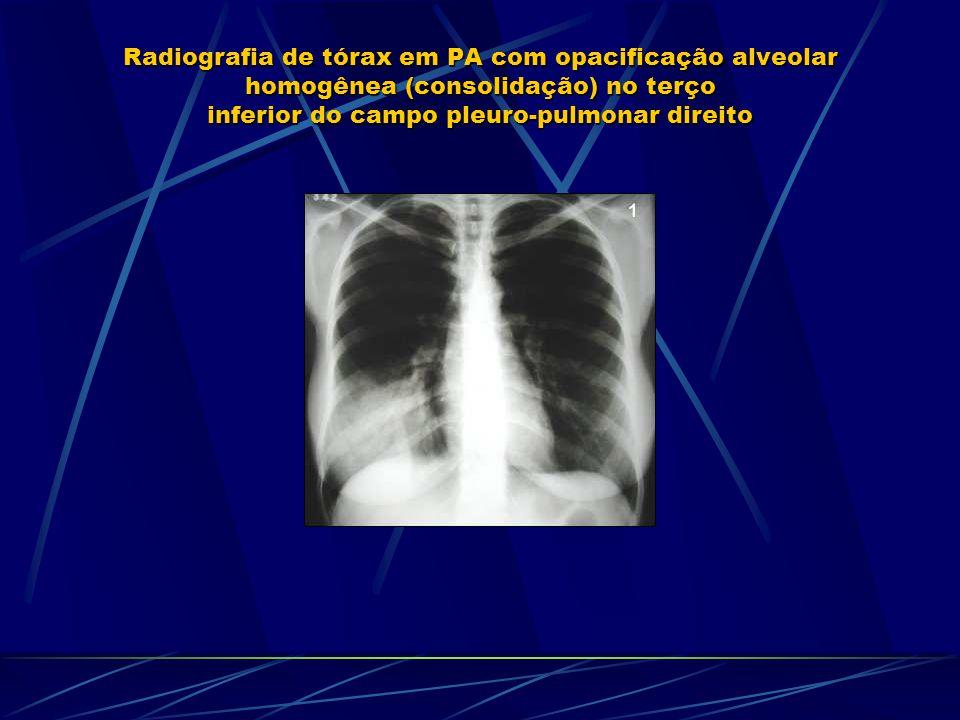 Radiografia de tórax em PA com opacificação alveolar homogênea (consolidação) no terço inferior do campo pleuro-pulmonar direito