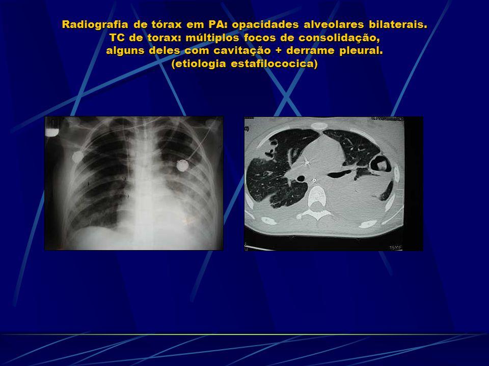 Radiografia de tórax em PA: opacidades alveolares bilaterais. TC de torax: múltiplos focos de consolidação, alguns deles com cavitação + derrame pleur