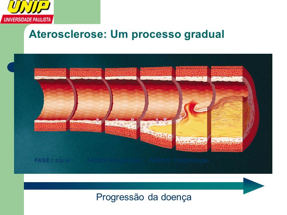 Aterosclerose: Um processo gradual Progressão da doença FASE I: Início FASE II: ProgressãoFASE III: Complicação