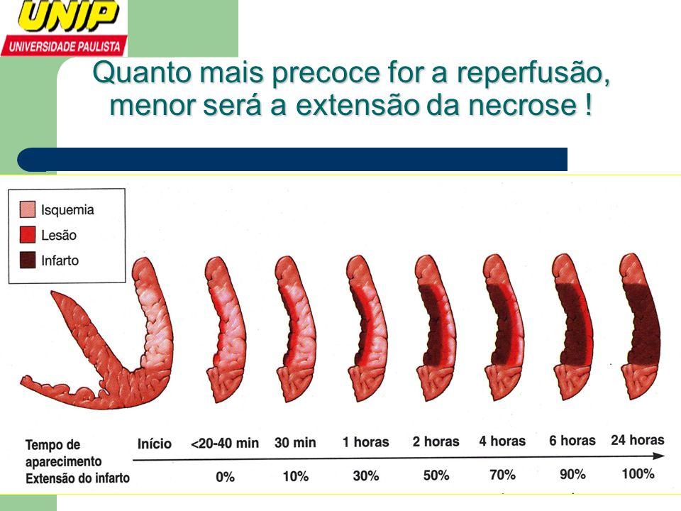 Quanto mais precoce for a reperfusão, menor será a extensão da necrose !