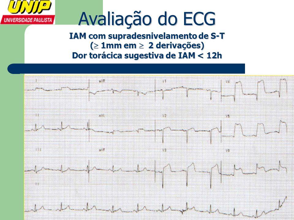 IAM com supradesnivelamento de S-T (  1mm em  2 derivações) Dor torácica sugestiva de IAM < 12h Avaliação do ECG