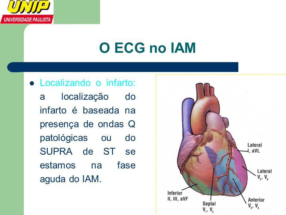 O ECG no IAM  Localizando o infarto: a localização do infarto é baseada na presença de ondas Q patológicas ou do SUPRA de ST se estamos na fase aguda