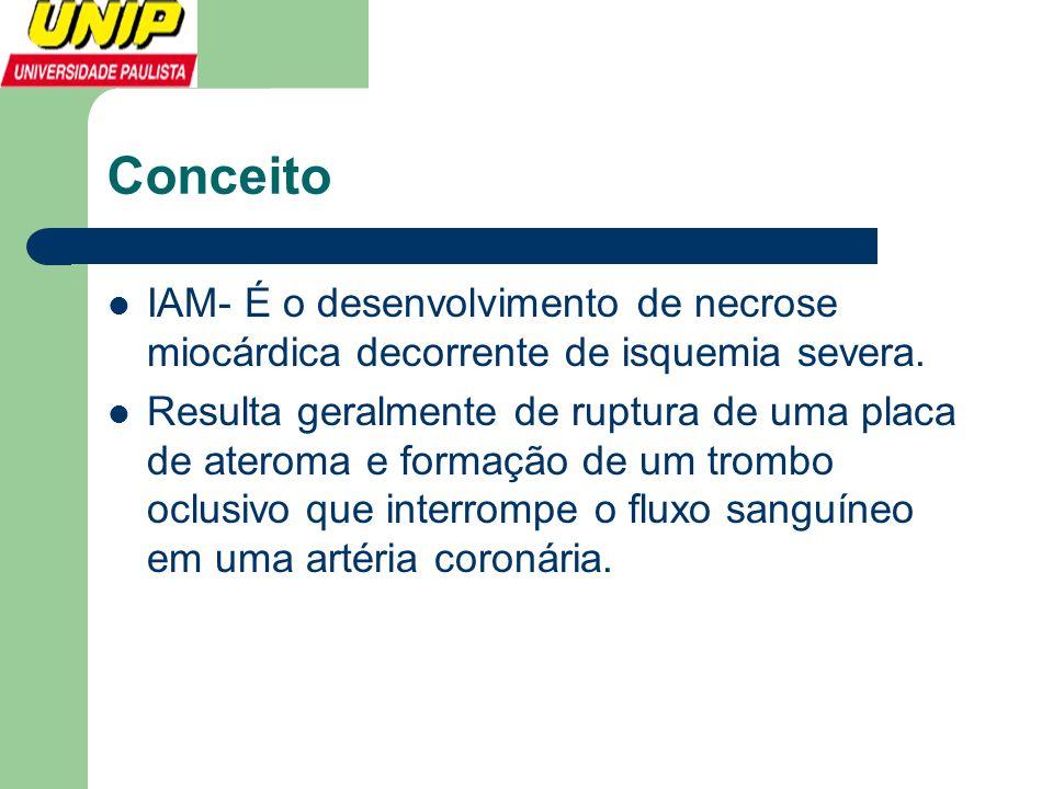 Conceito  IAM- É o desenvolvimento de necrose miocárdica decorrente de isquemia severa.  Resulta geralmente de ruptura de uma placa de ateroma e for