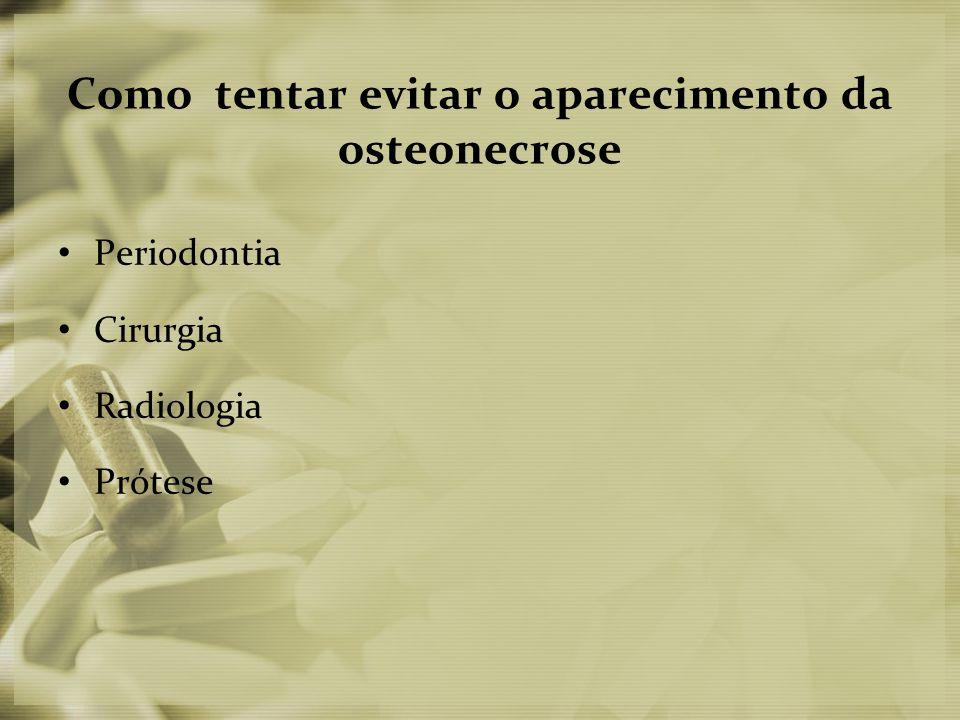 Como tentar evitar o aparecimento da osteonecrose • Periodontia • Cirurgia • Radiologia • Prótese