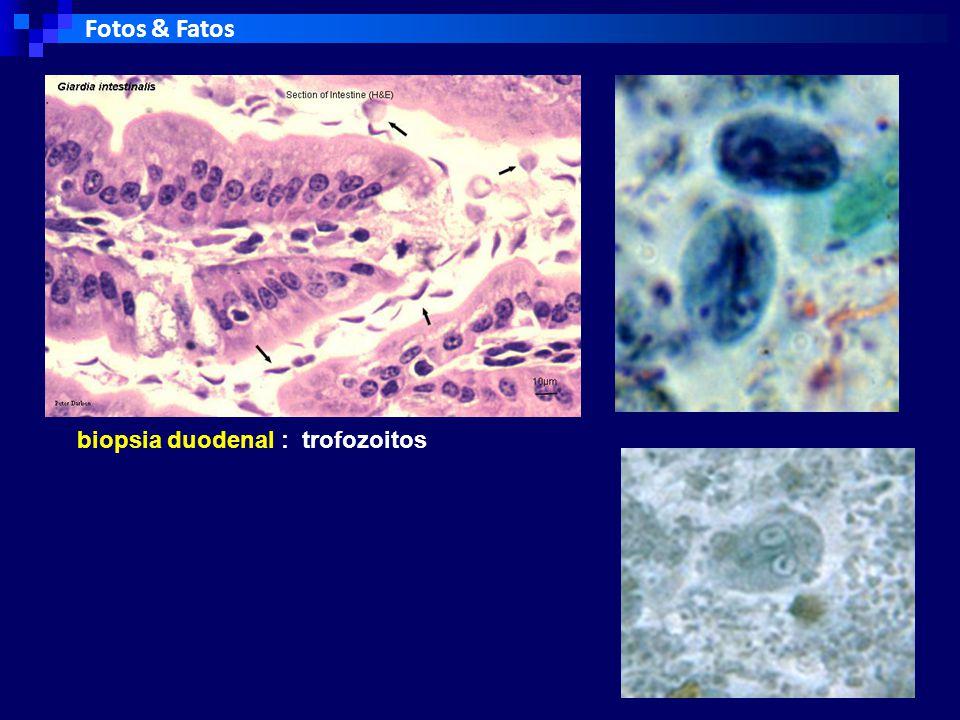 Fotos & Fatos biopsia duodenal : trofozoitos