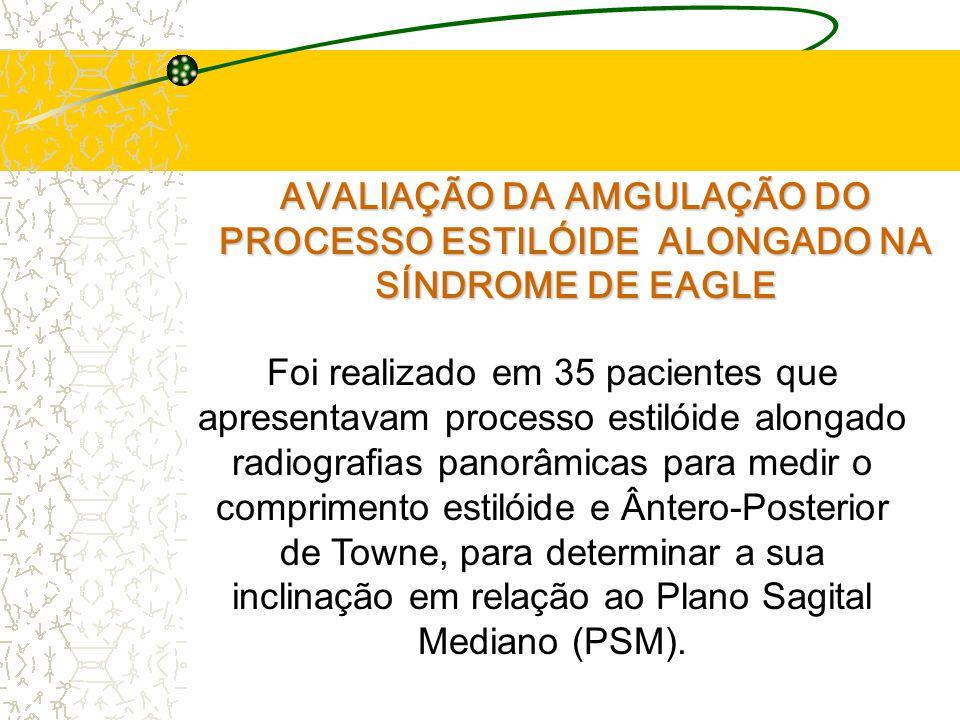 AVALIAÇÃO DA AMGULAÇÃO DO PROCESSO ESTILÓIDE ALONGADO NA SÍNDROME DE EAGLE Foi realizado em 35 pacientes que apresentavam processo estilóide alongado radiografias panorâmicas para medir o comprimento estilóide e Ântero-Posterior de Towne, para determinar a sua inclinação em relação ao Plano Sagital Mediano (PSM).