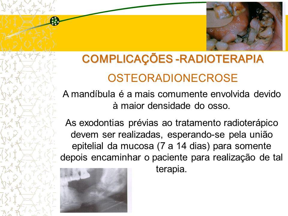 COMPLICAÇÕES -RADIOTERAPIA OSTEORADIONECROSE A mandíbula é a mais comumente envolvida devido à maior densidade do osso.