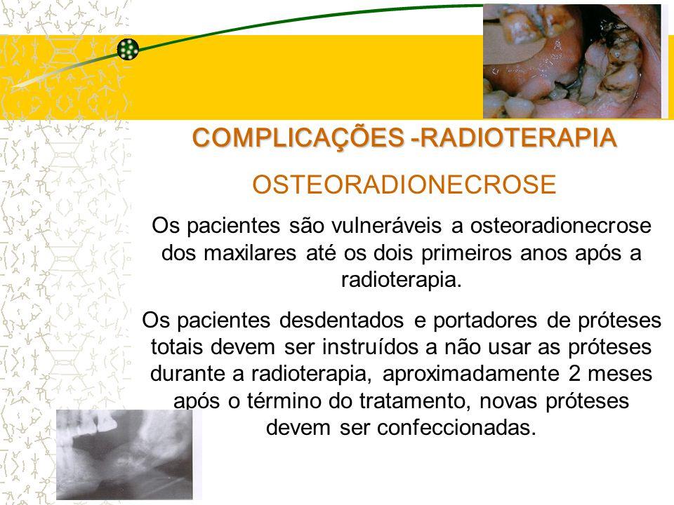 COMPLICAÇÕES -RADIOTERAPIA OSTEORADIONECROSE Os pacientes são vulneráveis a osteoradionecrose dos maxilares até os dois primeiros anos após a radioterapia.