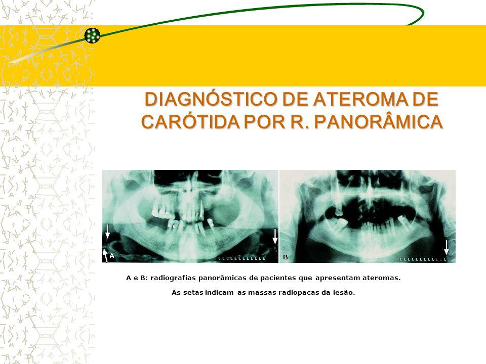 DIAGNÓSTICO DE ATEROMA DE CARÓTIDA POR R.