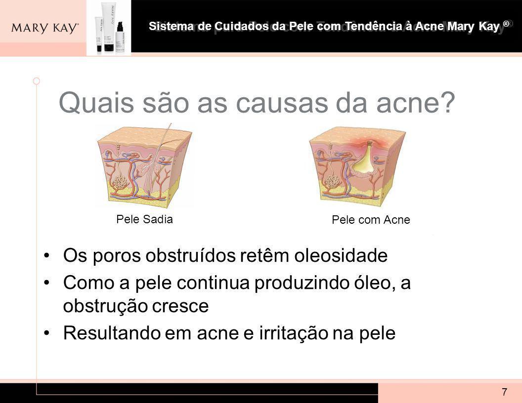 Sistema para Pele com Tendência à Acne Mary Kay ® 7 Quais são as causas da acne.