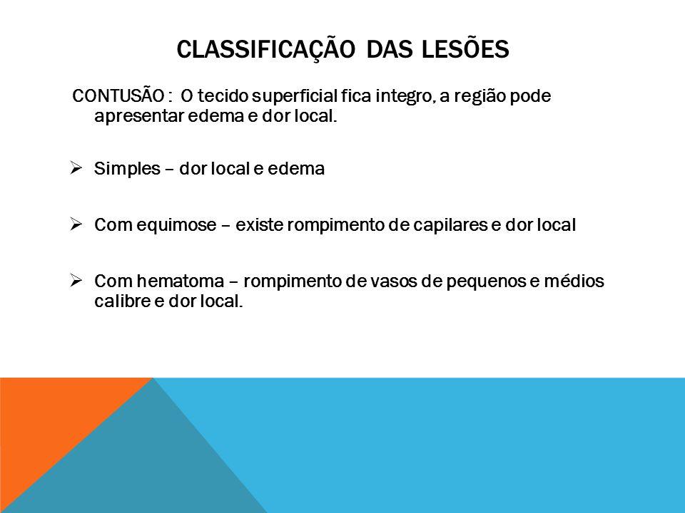 CLASSIFICAÇÃO DAS LESÕES CONTUSÃO : O tecido superficial fica integro, a região pode apresentar edema e dor local.  Simples – dor local e edema  Com