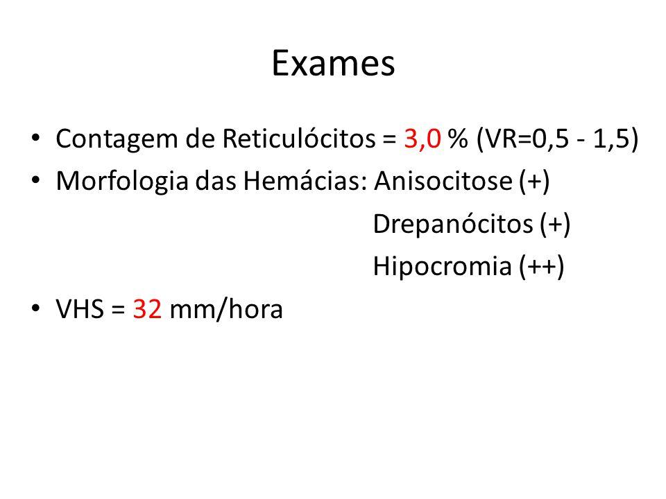 Exames • Contagem de Reticulócitos = 3,0 % (VR=0,5 - 1,5) • Morfologia das Hemácias: Anisocitose (+) Drepanócitos (+) Hipocromia (++) • VHS = 32 mm/ho