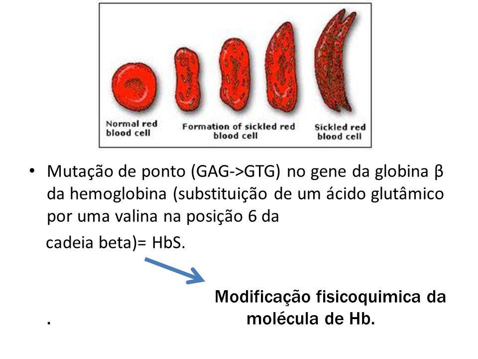 • Mutação de ponto (GAG->GTG) no gene da globina β da hemoglobina (substituição de um ácido glutâmico por uma valina na posição 6 da cadeia beta)= HbS