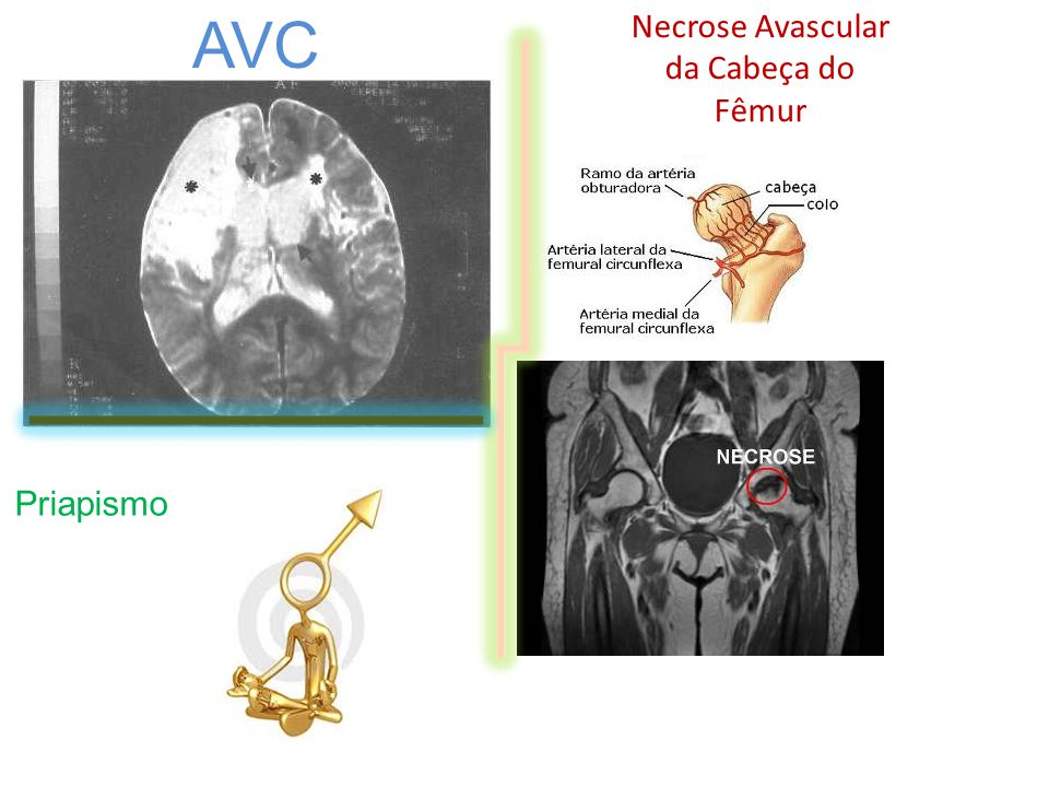 Necrose Avascular da Cabeça do Fêmur AVC Priapismo