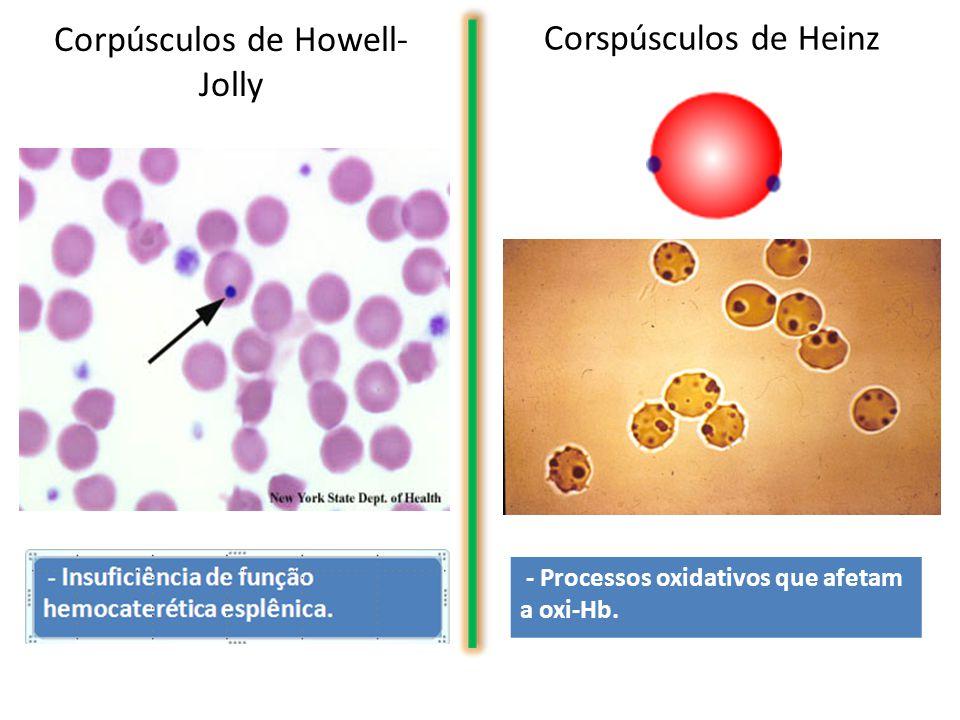Corpúsculos de Howell- Jolly Corspúsculos de Heinz - Processos oxidativos que afetam a oxi-Hb.