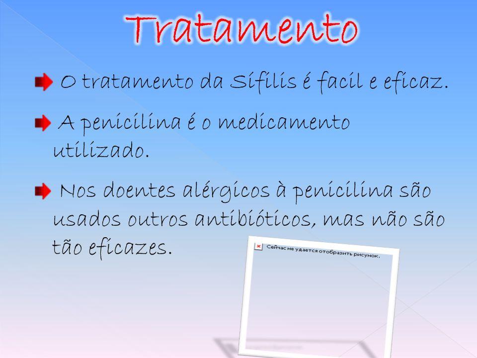 O tratamento da Sífilis é facil e eficaz. A penicilina é o medicamento utilizado. Nos doentes alérgicos à penicilina são usados outros antibióticos, m