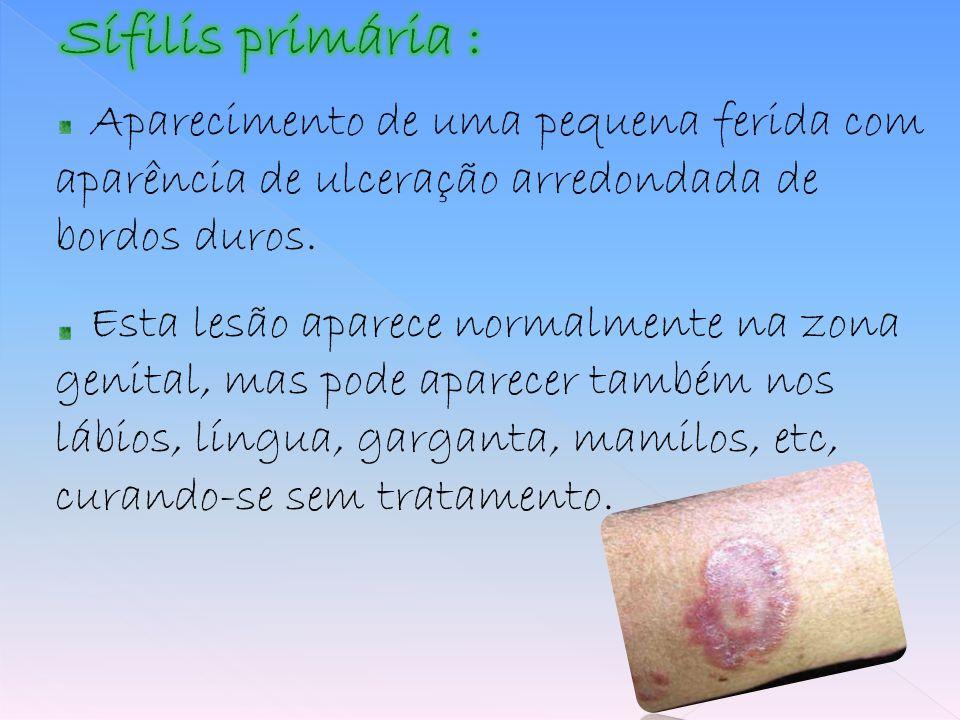 Aparecimento de uma pequena ferida com aparência de ulceração arredondada de bordos duros. Esta lesão aparece normalmente na zona genital, mas pode ap