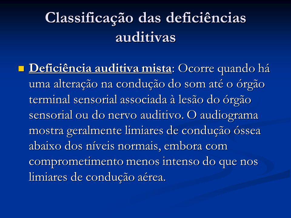 Classificação das deficiências auditivas  Deficiência auditiva mista: Ocorre quando há uma alteração na condução do som até o órgão terminal sensoria