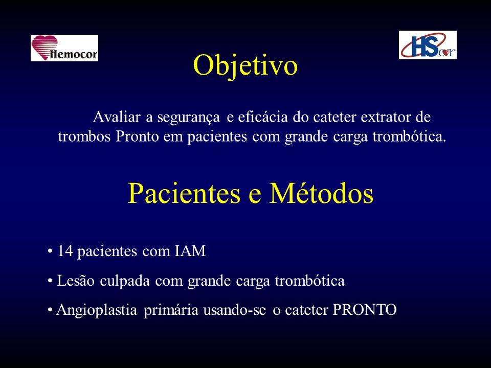 Objetivo Avaliar a segurança e eficácia do cateter extrator de trombos Pronto em pacientes com grande carga trombótica. Pacientes e Métodos • 14 pacie