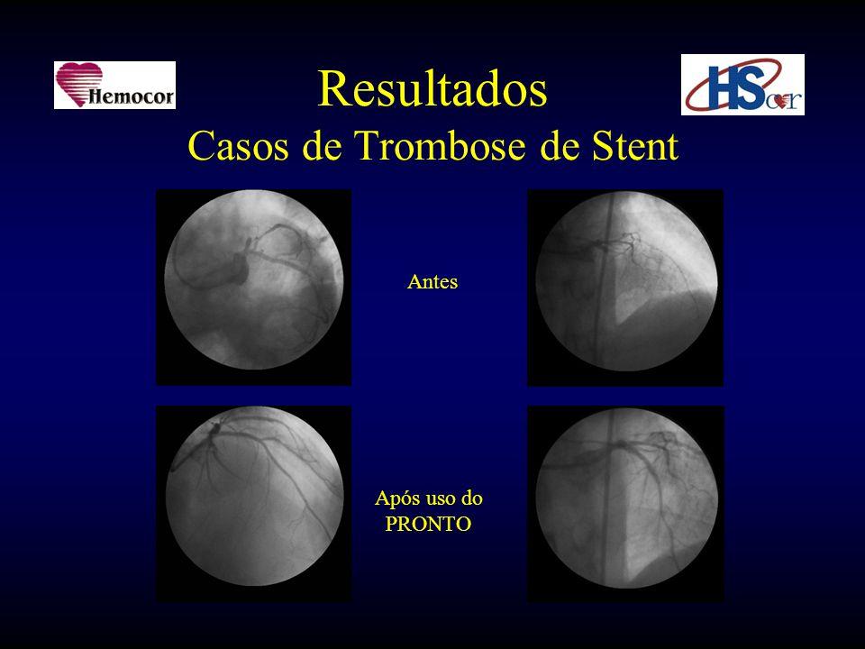 Resultados Casos de Trombose de Stent Antes Após uso do PRONTO