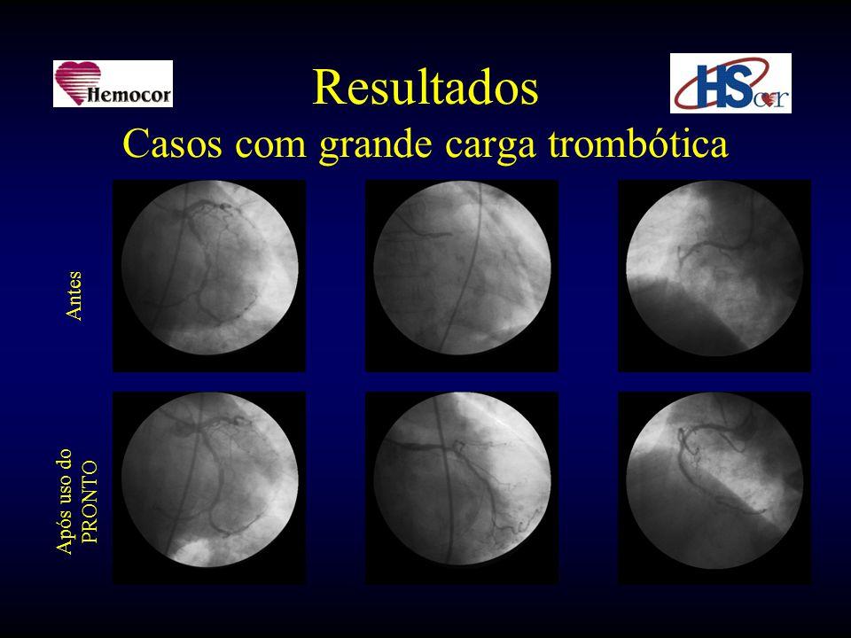 Resultados Casos com grande carga trombótica Antes Após uso do PRONTO