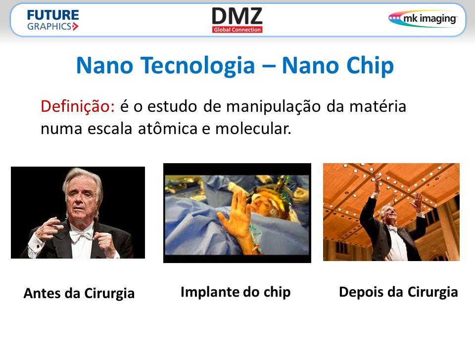 Nano Tecnologia – Nano Chip Definição: é o estudo de manipulação da matéria numa escala atômica e molecular. Antes da Cirurgia Depois da CirurgiaImpla