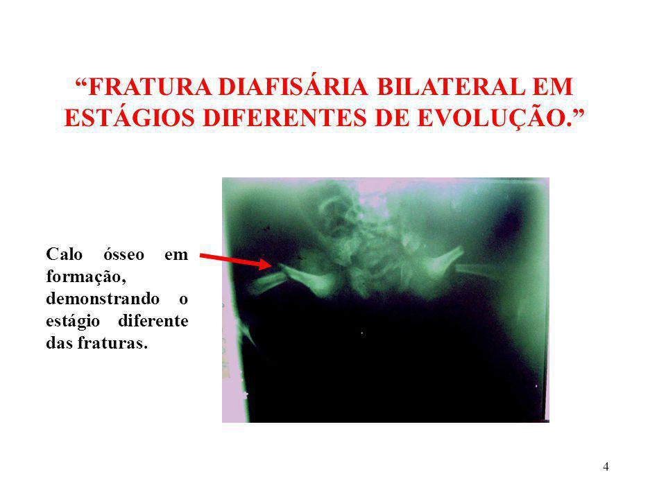 4 FRATURA DIAFISÁRIA BILATERAL EM ESTÁGIOS DIFERENTES DE EVOLUÇÃO. Calo ósseo em formação, demonstrando o estágio diferente das fraturas.