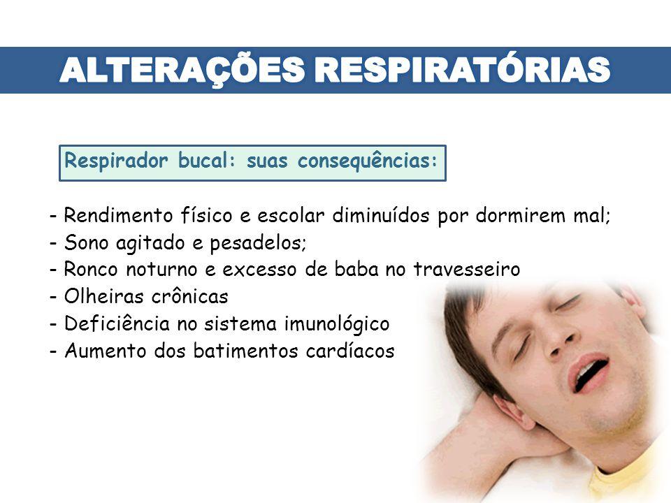 Respirador bucal: suas consequências: - Rendimento físico e escolar diminuídos por dormirem mal; - Sono agitado e pesadelos; - Ronco noturno e excesso
