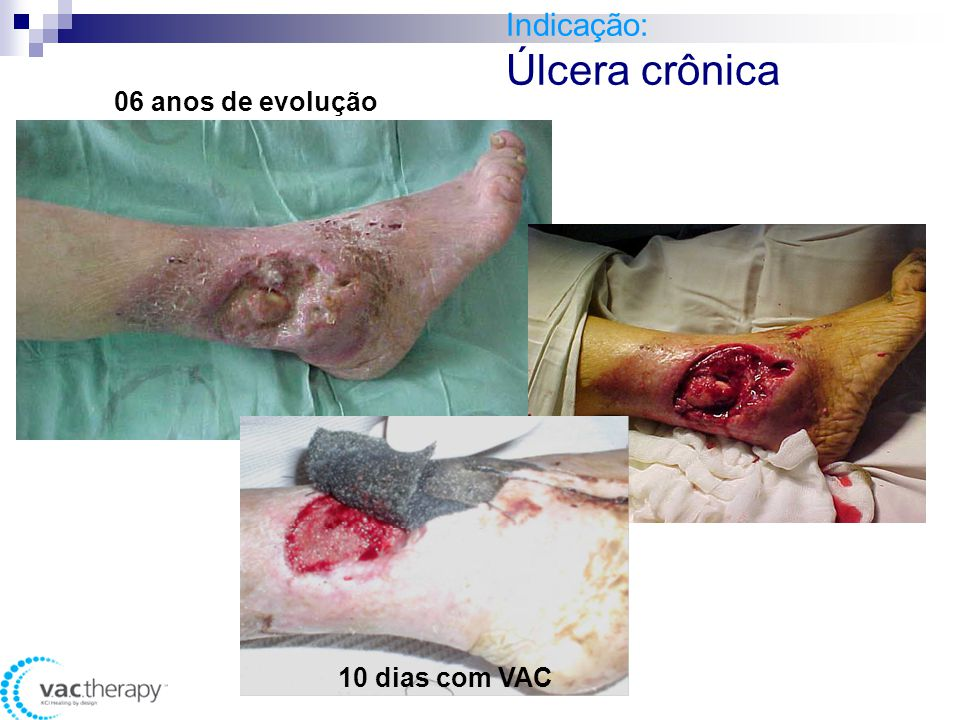 Indicação: Úlcera crônica 12 dias com VAC 06 anos de evolução 10 dias com VAC
