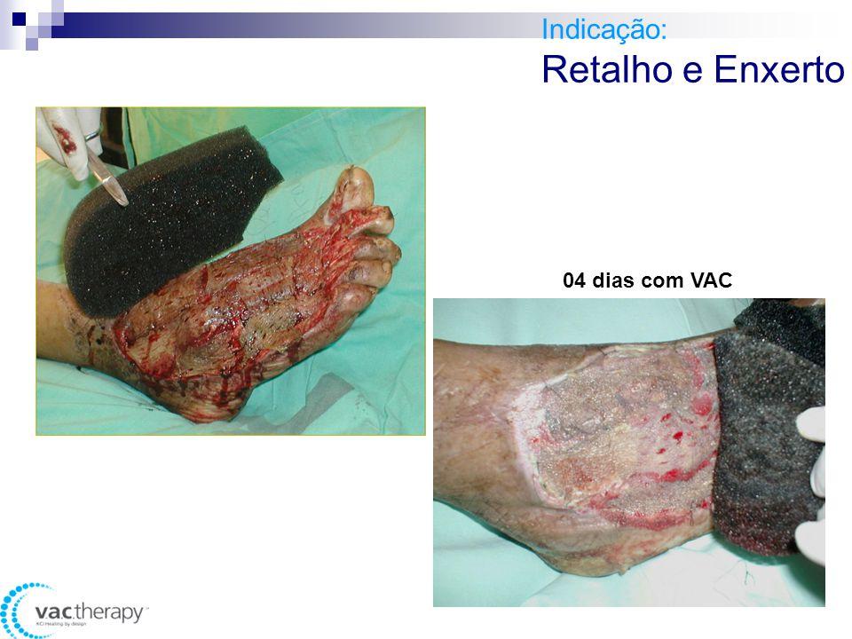 Indicação: Retalho e Enxerto 04 dias com VAC