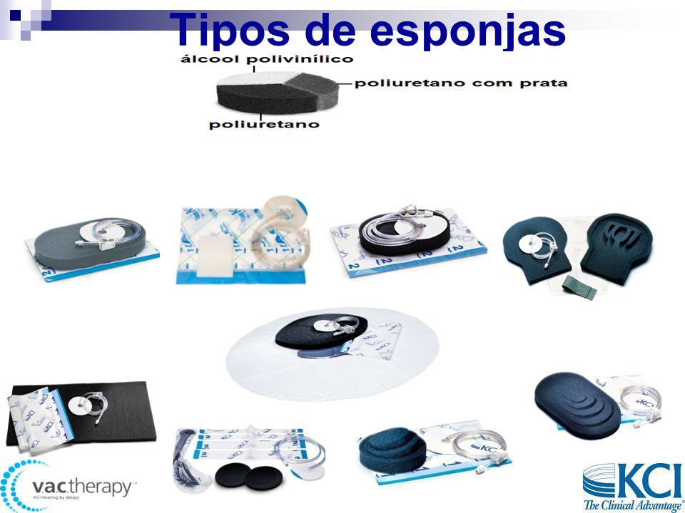 Tipos de esponjas