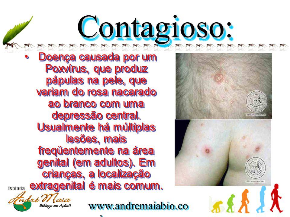 www.andremaiabio.co m.br Contagioso:Contagioso: • Doença causada por um Poxvírus, que produz pápulas na pele, que variam do rosa nacarado ao branco co