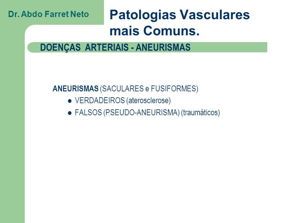 VERDADEIROS (arteriosclerose) Calcificações da parede ao RX simples Dr.