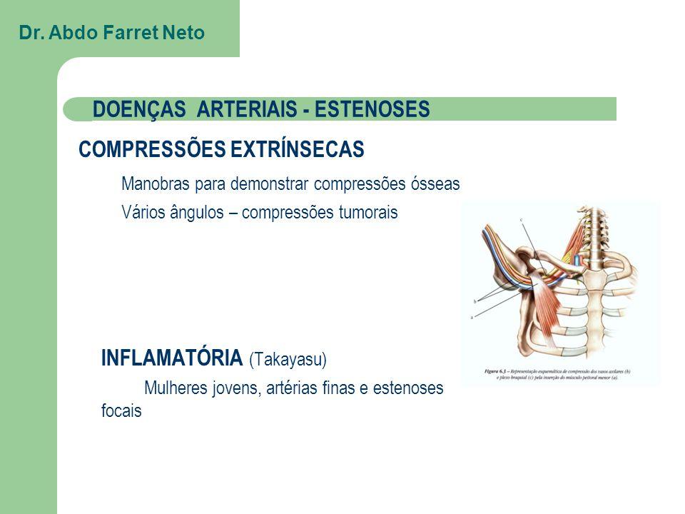 DOENÇAS ARTERIAIS - ESTENOSES INFLAMATÓRIA (Takayasu) Mulheres jovens, artérias finas e estenoses focais COMPRESSÕES EXTRÍNSECAS Manobras para demonstrar compressões ósseas Vários ângulos – compressões tumorais Dr.