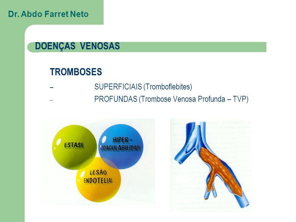DOENÇAS VENOSAS TROMBOSES – SUPERFICIAIS (Tromboflebites) – PROFUNDAS (Trombose Venosa Profunda – TVP) Dr.