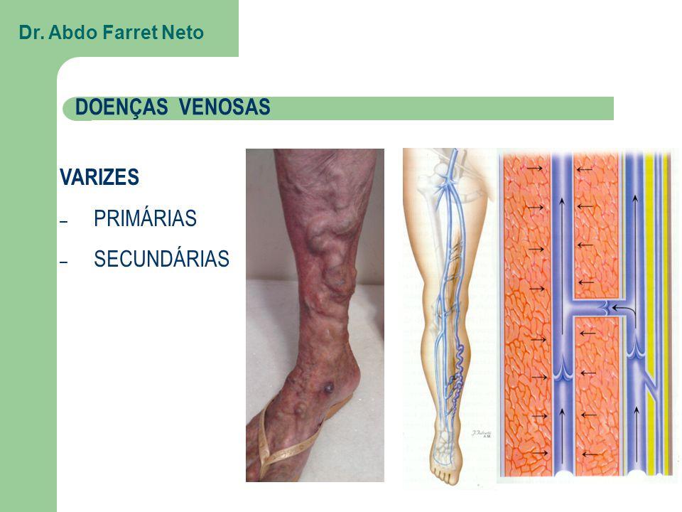 VARIZES – PRIMÁRIAS – SECUNDÁRIAS DOENÇAS VENOSAS Dr. Abdo Farret Neto