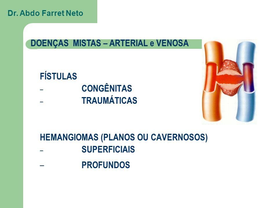 DOENÇAS MISTAS – ARTERIAL e VENOSA FÍSTULAS – CONGÊNITAS – TRAUMÁTICAS HEMANGIOMAS (PLANOS OU CAVERNOSOS) – SUPERFICIAIS – PROFUNDOS Dr.
