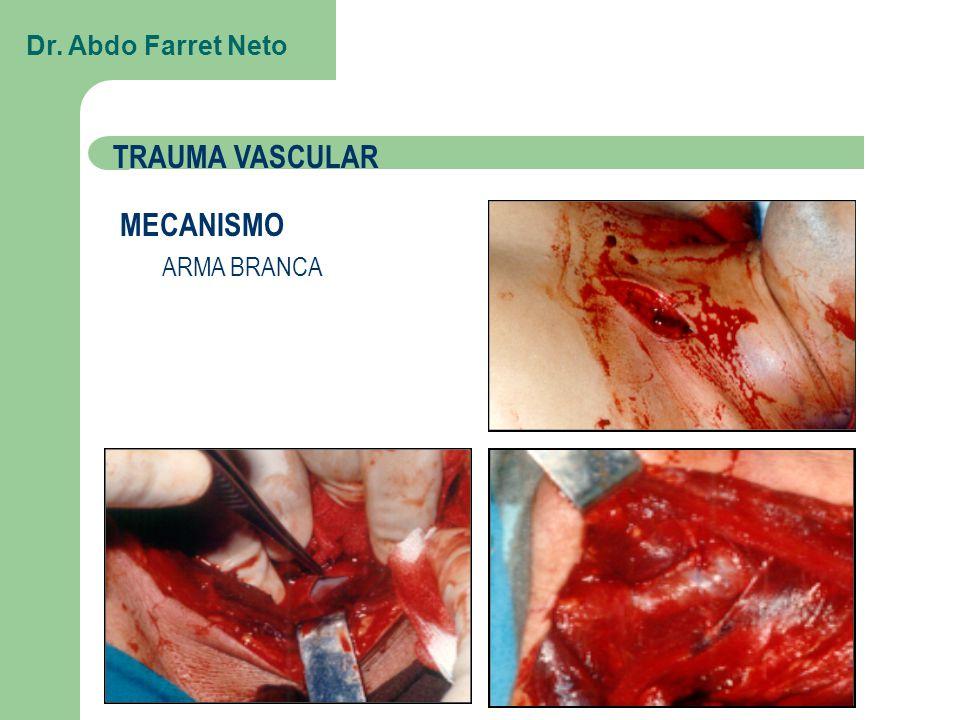 MECANISMO ARMA BRANCA TRAUMA VASCULAR Dr. Abdo Farret Neto